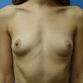 25-34 year old woman treated with Breast Augmentation before 3400535