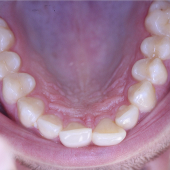 25-34 year old man treated with Invisalign before 3763966