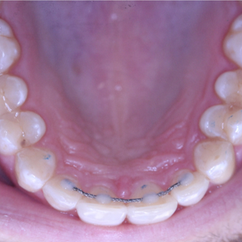 25-34 year old man treated with Invisalign after 3763966