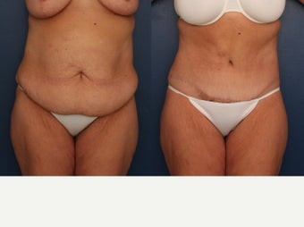 35-44 year old woman treated with Tummy Tuck before 3699211