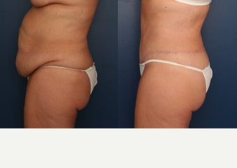 35-44 year old woman treated with Tummy Tuck after 3699211