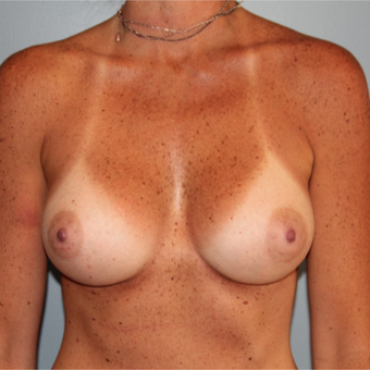 38 year old woman treated with Breast Implants to improve volume and sag after 3544381