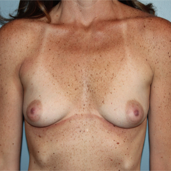 38 year old woman treated with Breast Implants to improve volume and sag before 3544381
