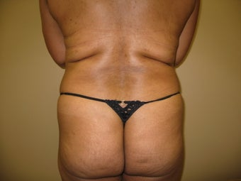 56 Year Old Female Treated with Transfer for Brazilian Butt Augmentation