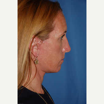 35-44 year old woman treated with Facelift after 3610246