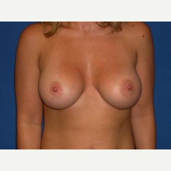 25-34 year old woman treated with Breast Augmentation after 3009206