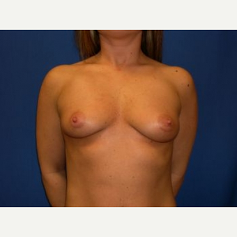 25-34 year old woman treated with Breast Augmentation before 3009206