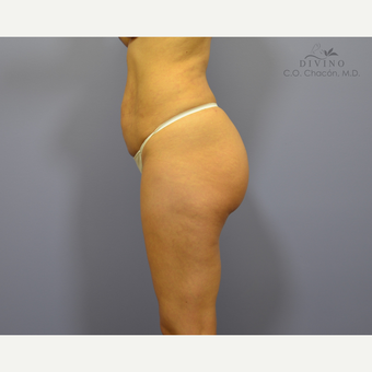 25-34 year old woman treated with Butt Implants before 3421274