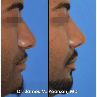 Rhinoplasty / Nose Reshaping in African American Male
