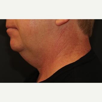 45-54 year old man treated with Kybella before 3819519