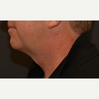 45-54 year old man treated with Kybella after 3819519