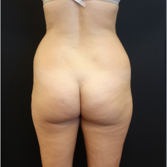 25-34 year old woman treated with Butt Augmentation before 3629846