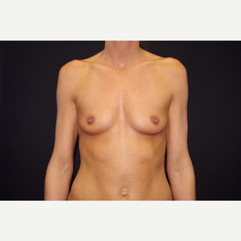 25-34 year old woman treated with Breast Augmentation before 3123715