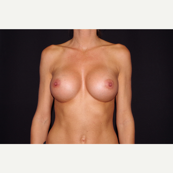 25-34 year old woman treated with Breast Augmentation after 3123715