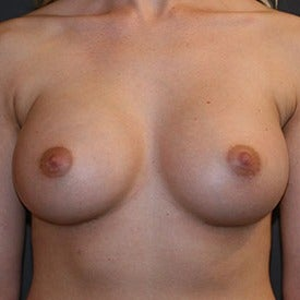 25-34 year old woman treated with Breast Augmentation after 2123329