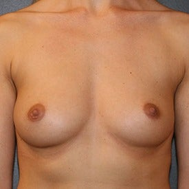 25-34 year old woman treated with Breast Augmentation before 2123329