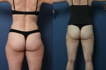 Liposuction- laser assisted (Smart Lipo) of Outer Thighs before 952392
