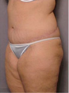 Adominoplasty 428195