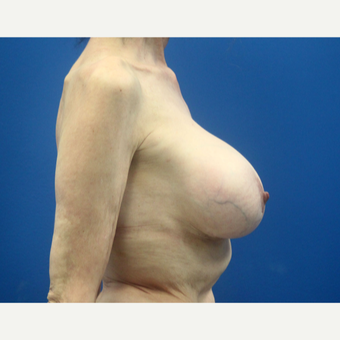 65-74 year old woman treated with Breast Implant Revision after 3366569