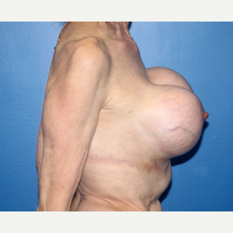 65-74 year old woman treated with Breast Implant Revision before 3366569
