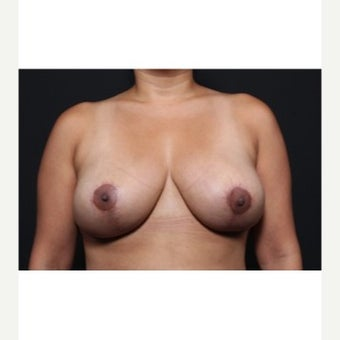 25-34 year old woman treated with Breast Implant Removal after 1872282