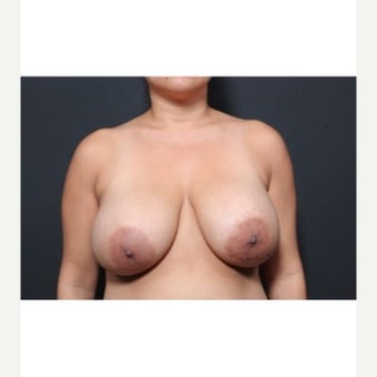 25-34 year old woman treated with Breast Implant Removal before 1872282