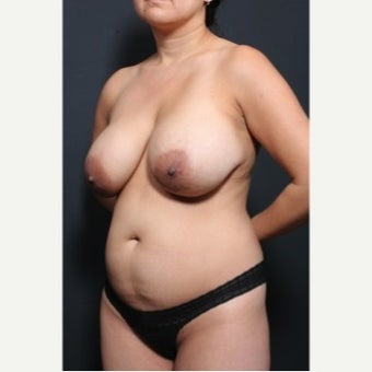 25-34 year old woman treated with Breast Implant Removal 1872282