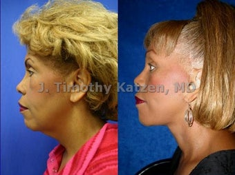 Brow and Neck Lift after massive weight loss before 667218