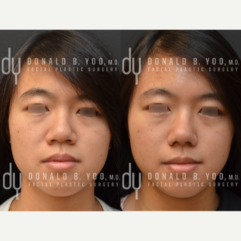 Asian Rhinoplasty with Rib cartilage before 3622577