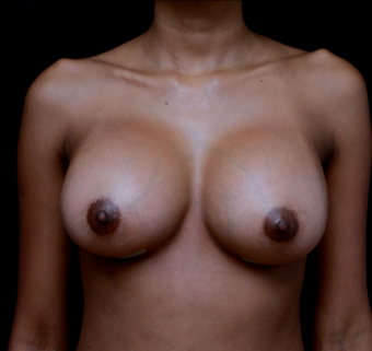 18-24 year old woman treated with Breast Implant Revision after 3735153