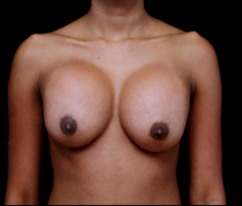 18-24 year old woman treated with Breast Implant Revision before 3735153