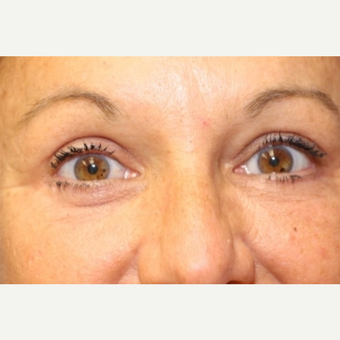 50 year old woman with Eyelid Surgery after 3697006