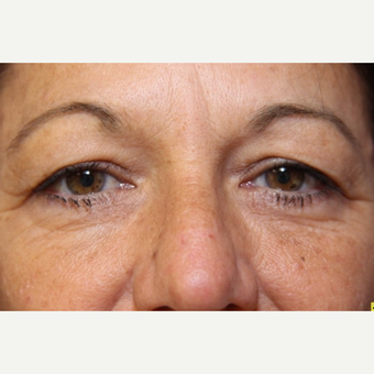 50 year old woman with Eyelid Surgery before 3697006