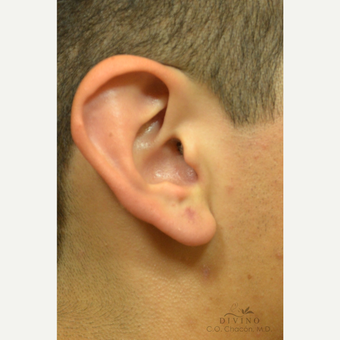 18-24 year old man treated with Ear Lobe Surgery after 3329586