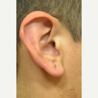 18-24 year old man treated with Ear Lobe Surgery before 3329586