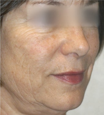 45-54 year old woman treated with ProFractional Laser before 2700000
