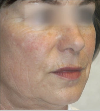 45-54 year old woman treated with ProFractional Laser after 2700000