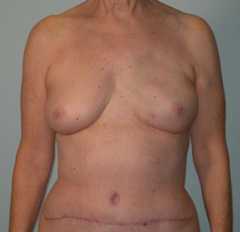 61-year-old female with left nipple-sparing immediate DIEP breast reconstruction through inframammary incision after 698994