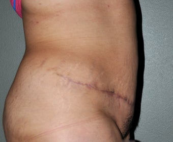 36 Year-Old Female Treated For Pregnancy Changes of Stomach 1415827