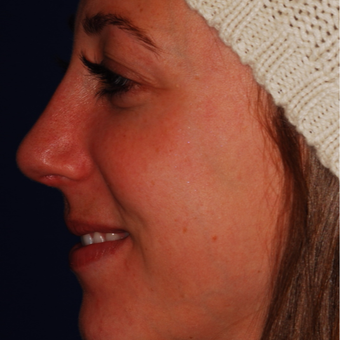 25-34 year old woman treated with Rhinoplasty after 3624337