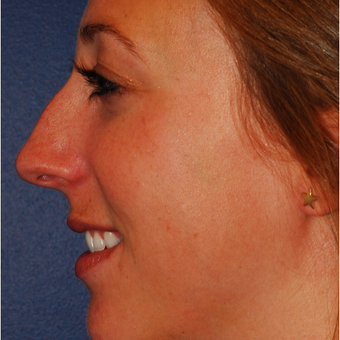 25-34 year old woman treated with Rhinoplasty before 3624337