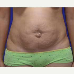25-34 year old woman treated with Tummy Tuck before 3519851