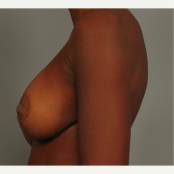 35-44 year old woman treated with Breast Augmentation after 3493290