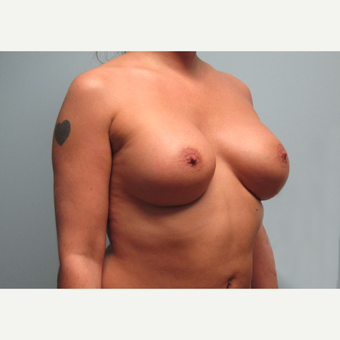 35-44 year old woman treated with Breast Implants after 3301198