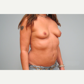 35-44 year old woman treated with Breast Implants before 3301198