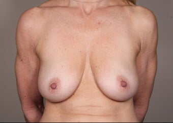 45-54 year old woman treated for Breast Augmentation before 1529807