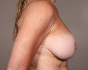 45-54 year old woman treated for Breast Augmentation 1529807