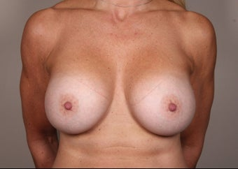 45-54 year old woman treated for Breast Augmentation after 1529807