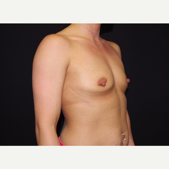 25-34 year old woman treated with Breast Implants before 3439746
