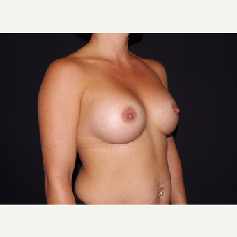 25-34 year old woman treated with Breast Implants after 3439746
